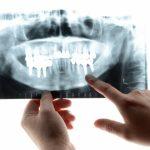 本当に良い歯医者の見分け方